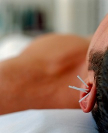 Acupunctureforweb